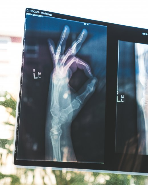 xray of a hand making an okay sign